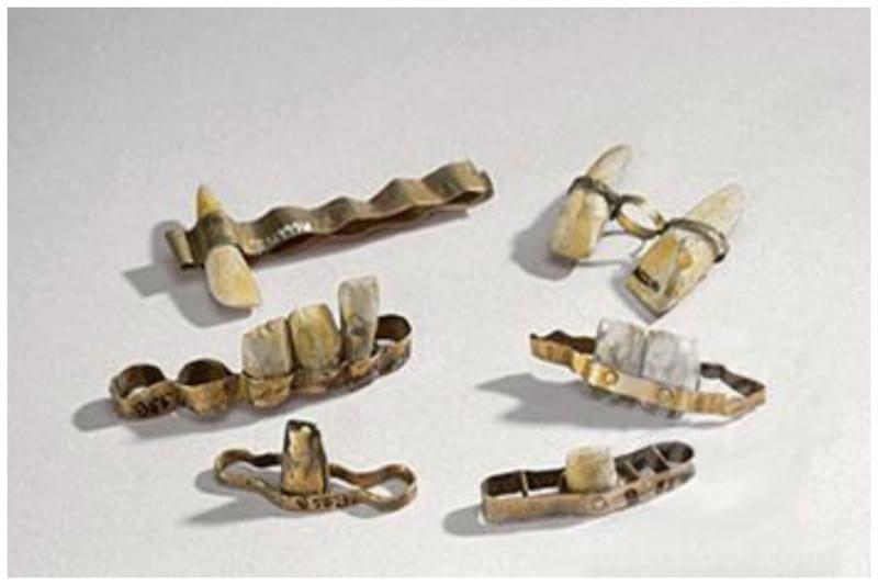 Image result for ancient roman braces