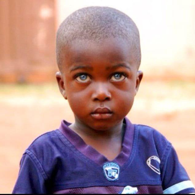 Чудо природы – 17 темнокожих детей с голубыми глазами (17 фото)