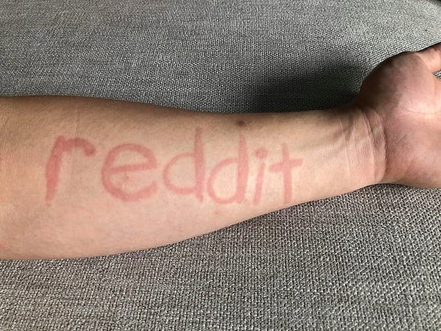 У одного из пользователей Reddit дермографизм — заболевание кожи, при котором она реагирует на незначительные механические воздействия, в результате которых появляются красные или белые полосы