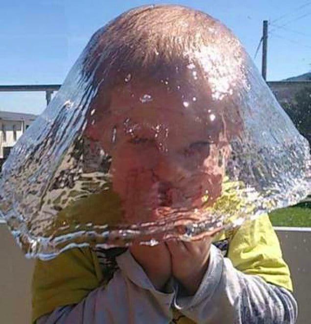 Кажется, что у этого мальчика на голове водяная шляпа 😯
