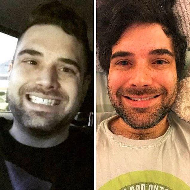 «Фото до и после операции на косоглазие!»