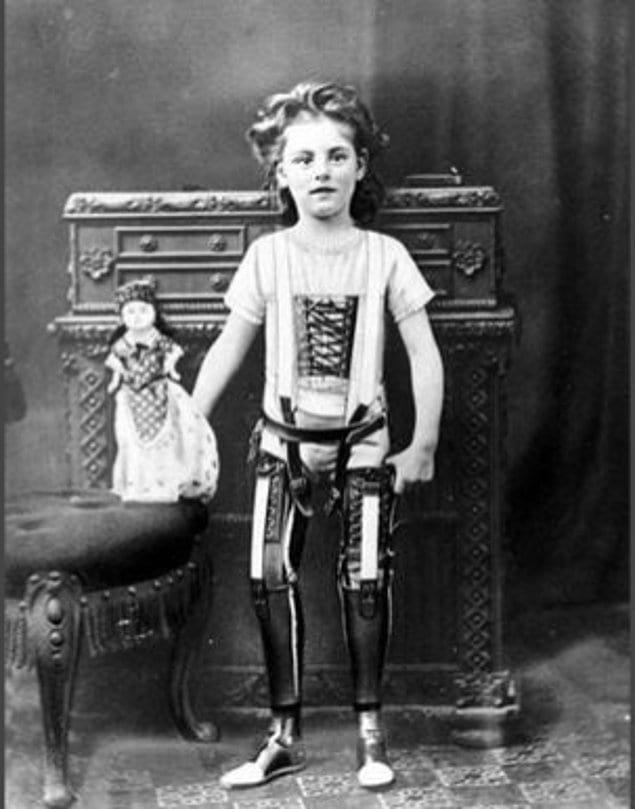 Впечатляющие протезы 1890-х годов