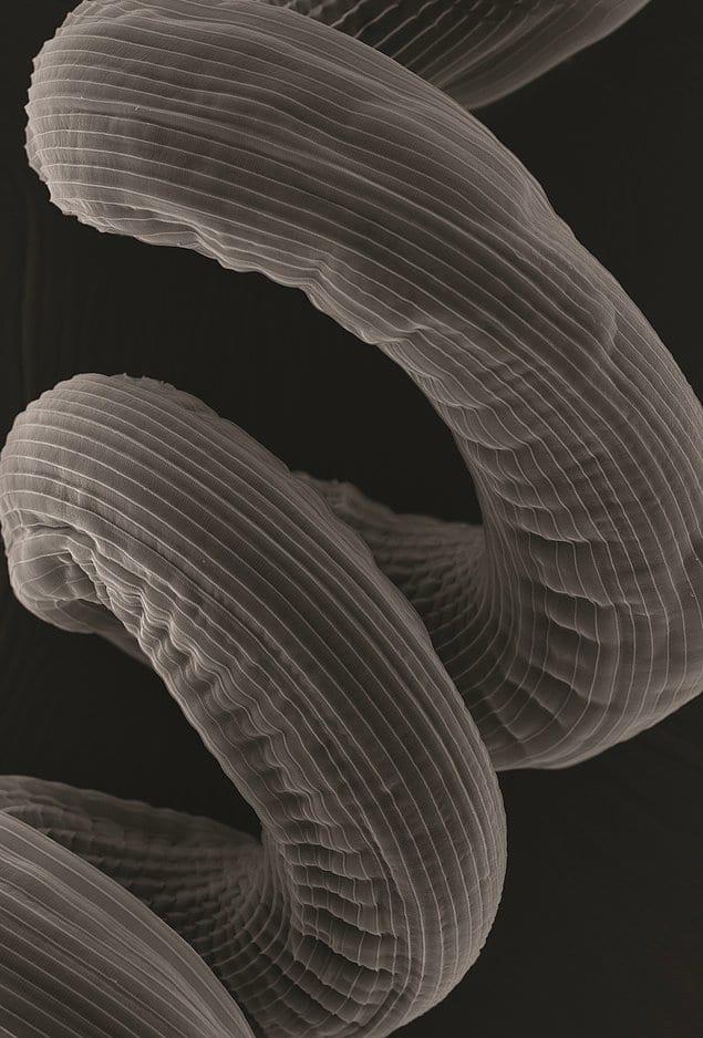 """В категории """"Микросъемка"""" победу одержало фото спирально закрученного тела гельминта. Автор Леандро Лемгрубер"""