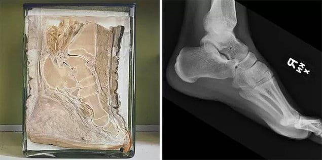 Нога слона в сравнении с ногой человека.